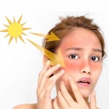 シミ・シワを作らせない|日焼け後の賢いアフターケア|どの化粧水がいい?美白ケアは?