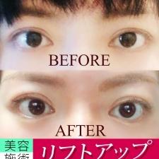 整形級の目の大きさ&二重幅の変化に! リフトアップ効果大な美容施術