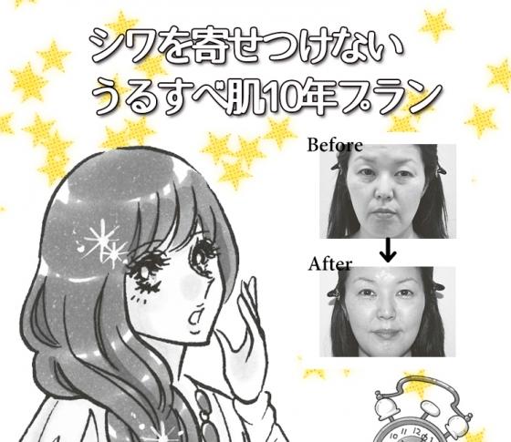 シワっぽくなりがちな人が30代からできる美容医療10年プラン