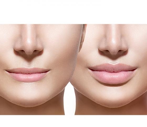 石原さとみのぷっくり唇が理想的だけど、どうやったらあの唇になれるの?【ビューティQ&A】