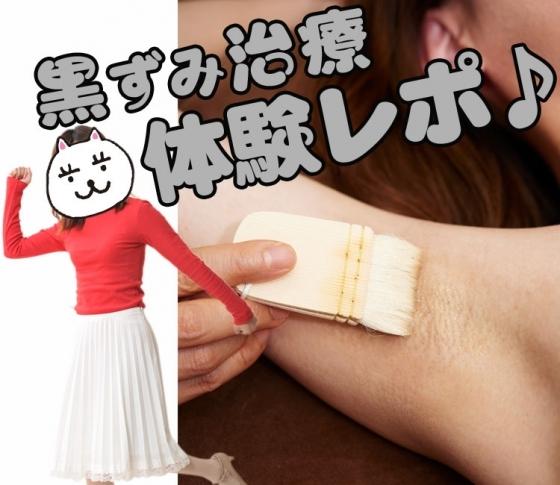 【医療レーザー】黒ずみ治療を体験してみた!【脇・二の腕】