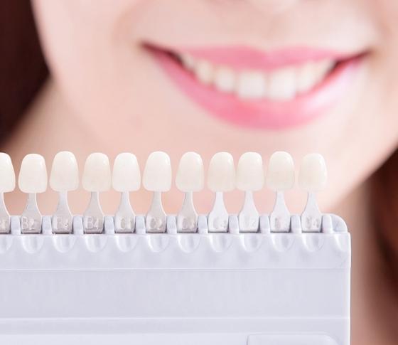 セラミック治療で好感度の高い笑顔を手に入れる!【駆け込み歯科ナビ】