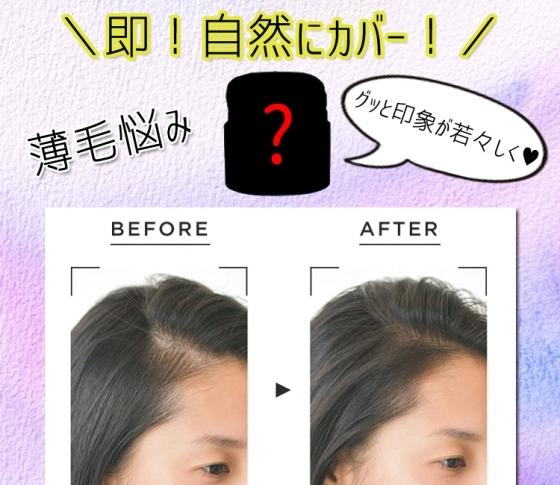 【薄毛悩み】透けてみえる頭皮を、即!自然にカバーしてくれるアイテムとは?!