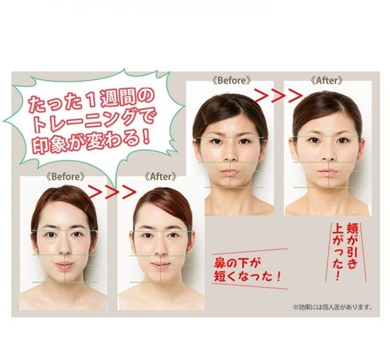 たった1週間で印象が変わる。  歯科医が教える整形級美顔術