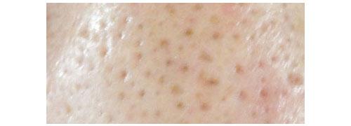 肌のブツブツの原因