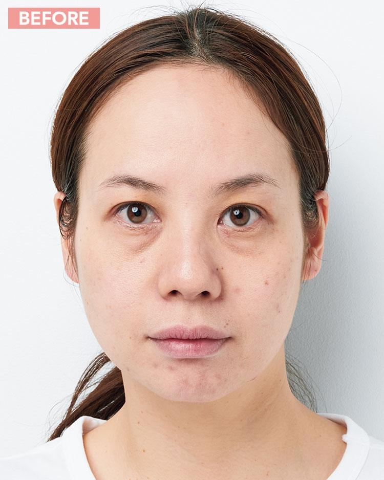 ゴワゴワ肌荒れ悩み/BEFORE