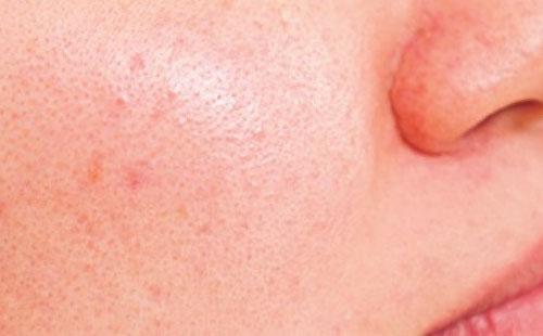 肌の赤みの原因:ターンオーバーの乱れ