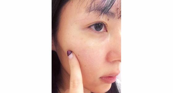 SHISEIDO,資生堂,ホワイト ルーセント マイクロ ブライトニング スポッツコレクター