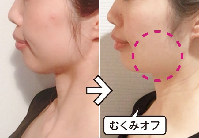 RF美顔器(EH-SR72) Before → After