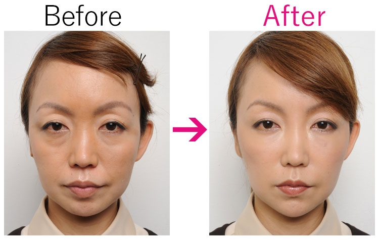 ヒアルロン酸リフト/Before・After