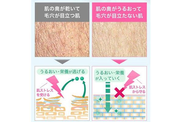 毛穴の比較
