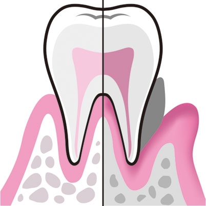 アラサー女子は歯周病による口臭が増える年代!