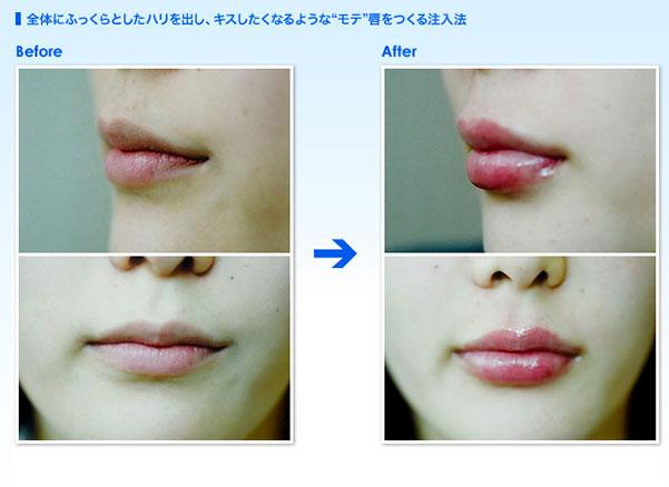 全体にふっくらとしたハリを出し、キスしたくなるようなモテ唇をつくる注入法